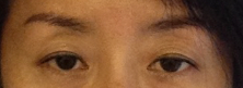 眼瞼下垂手術ビフォー